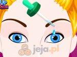 Operacja oka Kopciuszka