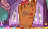 Zraniona stopa Clawdeen