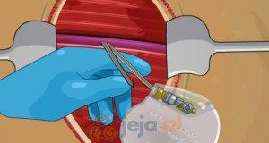 Operacja na otwartym sercu