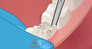 Operacja dentystyczna
