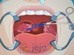 Operacja wycięcia migdałków