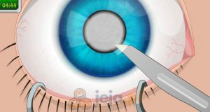Operacja oka