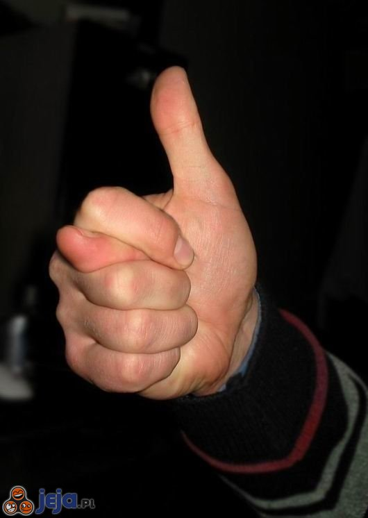 People with two thumbs on one hand