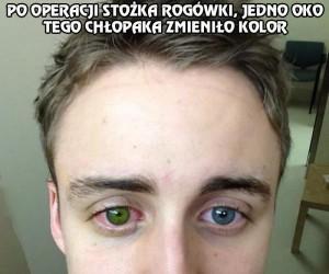 Szybka zmiana koloru oczu
