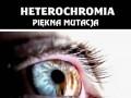 Heterochromia - piękna mutacja