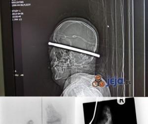 Szokujące zdjęcia rentgenowskie