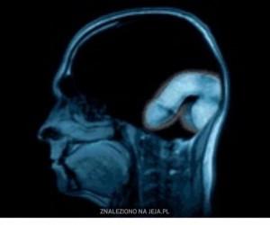 Umierający mózg