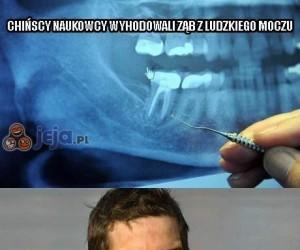 Chińscy naukowcy wyhodowali ząb z ludzkiego moczu