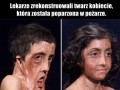 Lekarze zrekonstruowali twarz kobiecie