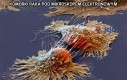 Komórki raka pod mikroskopem elektronowym