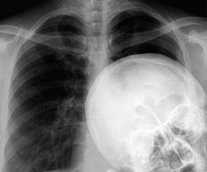 Zdjęcie rentgena