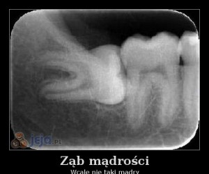 Ząb mądrości