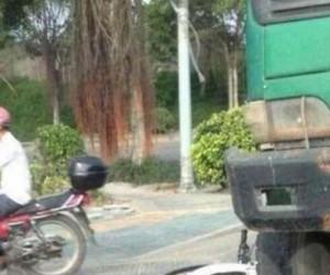 Chińska dziewczynka po wypadku