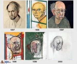 Obrazy chorego na Alzheimera