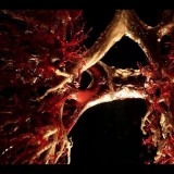 Avatar Limfangioleiomiomatoza