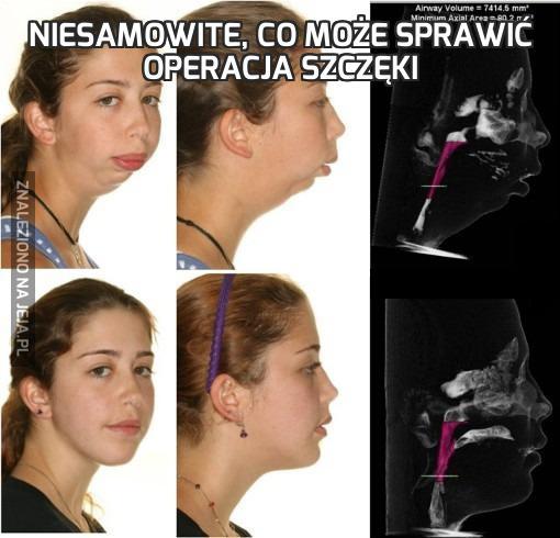 Niesamowite, co może sprawić operacja szczęki