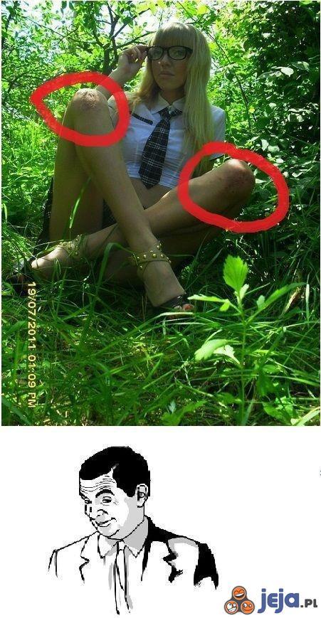 Odgniecenia na kolanach