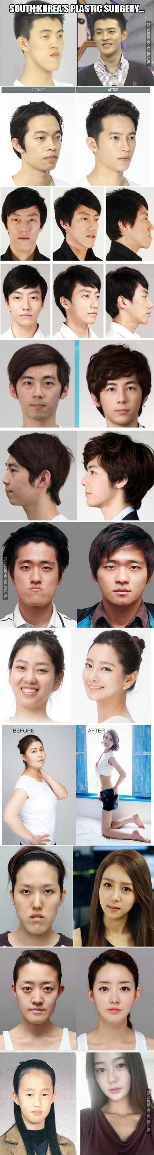 Operacje plastyczne w Południowej Korei