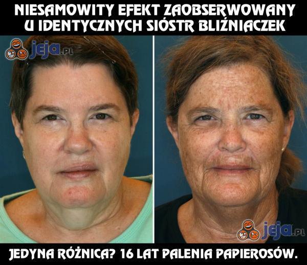 Niesamowity efekt zaobserwowany u bliźniaczek