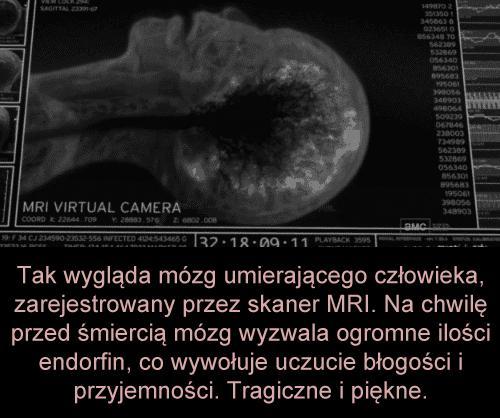 Mózg umierającego człowieka
