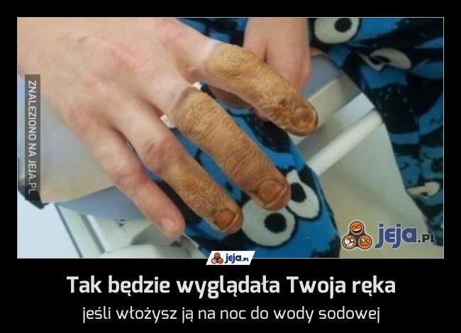 Tak będzie wyglądała Twoja ręka