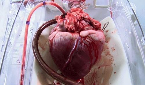 Serce tuż przed przeszczepem