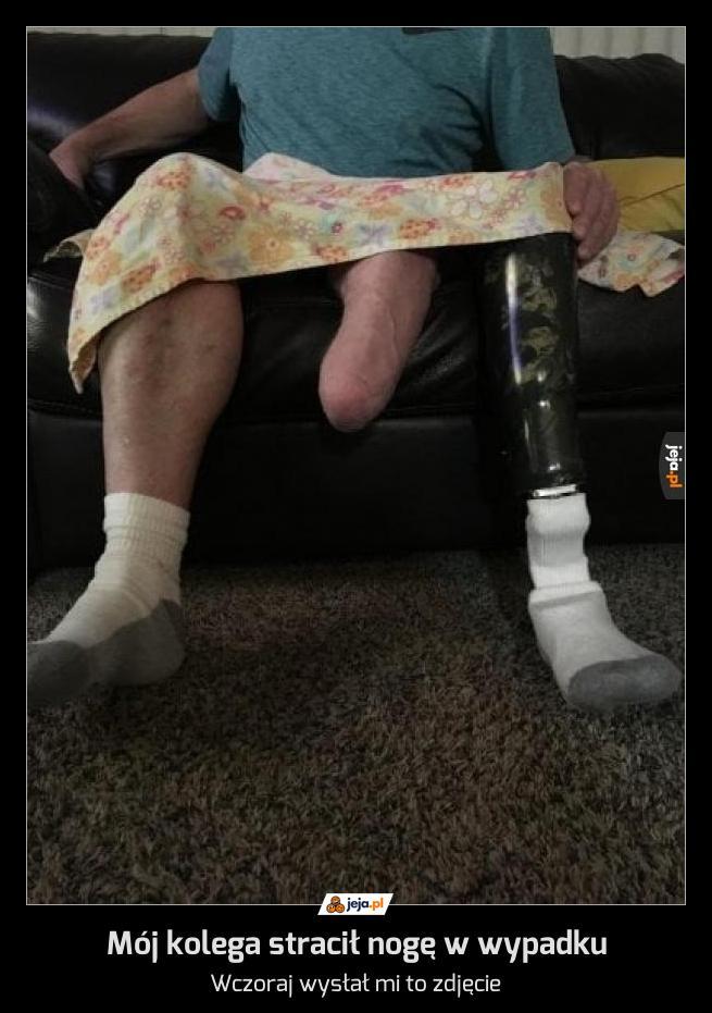 Mój kolega stracił nogę w wypadku