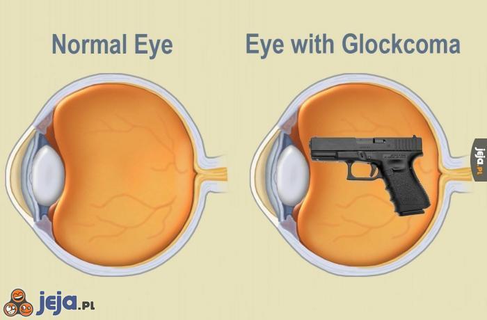 Zdrowe oko vs Oko z jaskrą