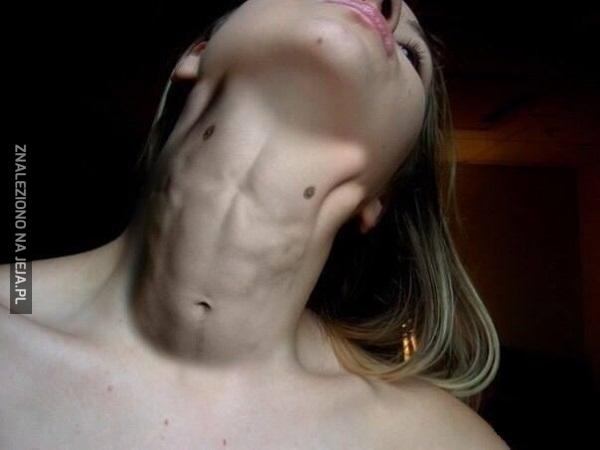 Muskularna szyja