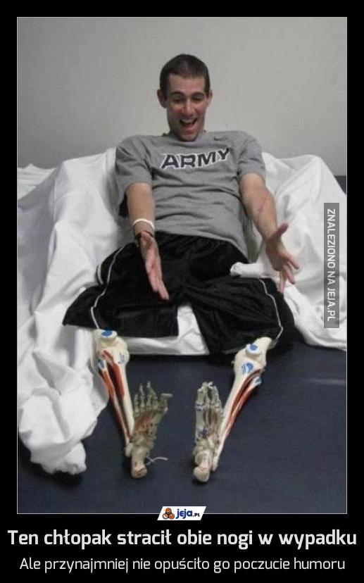 Ten chłopak stracił obie nogi w wypadku