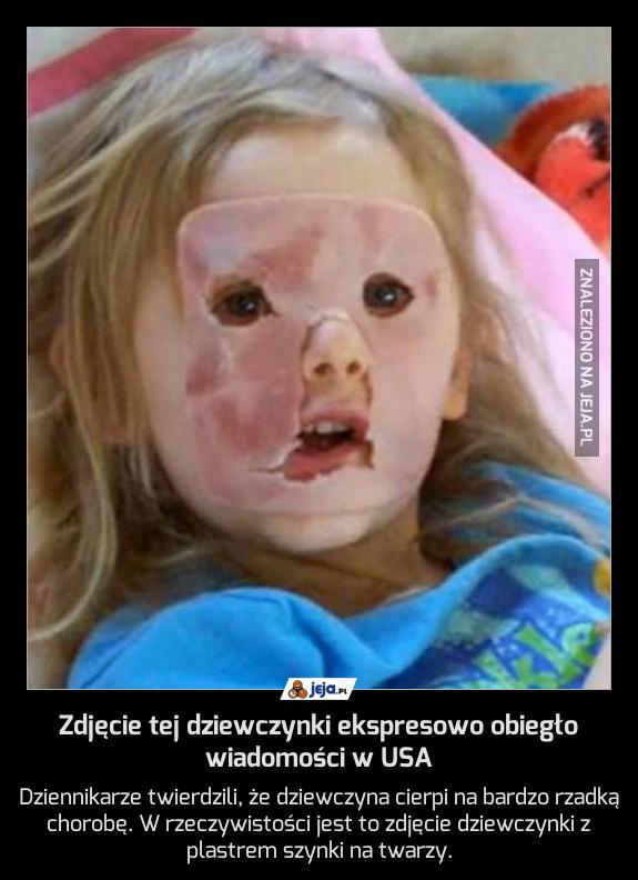 Zdjęcie tej dziewczynki ekspresowo obiegło wiadomości w USA