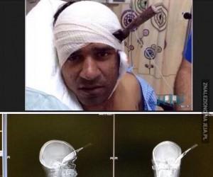 Mężczyzna przeżył atak nożem w głowę