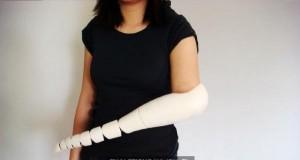 Proteza ręki niczym macka ośmiornicy