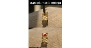 Transplantacja mózgu