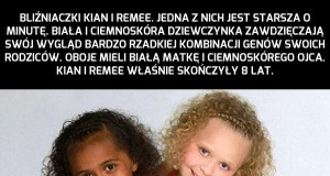 Niesamowite siostry bliźniaczki