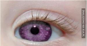 Choroba fioletowych oczu -  Alexandria Genesis