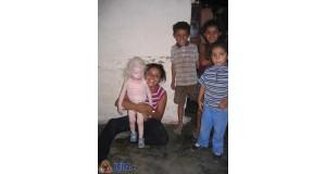 Indiański albinos
