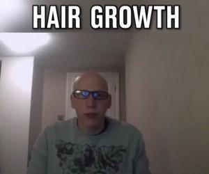 Proces wyrastania włosów