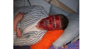 Czerwona twarz