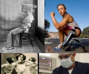 Niesamowity postęp medycyny