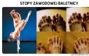 Stopy zawodowej baletnicy